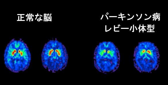パーキンソン脳画像